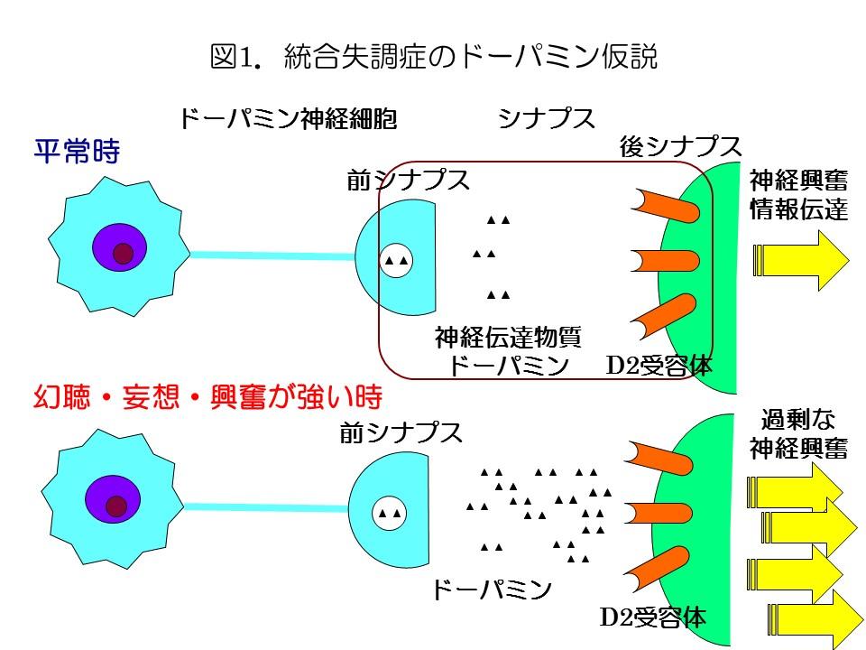 図1統合失調症のドーパミン仮説